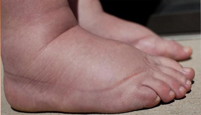 Vài mẹo giảm phù nề cho chân ở người già