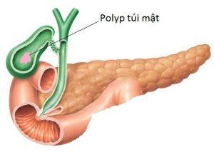 Bạn biết gì về bệnh Polyp túi mật?