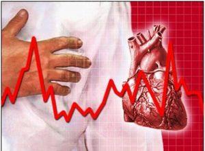 Rối loạn nhịp tim là bệnh biểu hiện của bệnh tim mạch