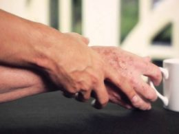 Bạn biết gì về bệnh run tay vô căn và biểu hiện bệnh của chúng?