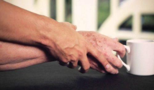 Bệnh run do rối loạn thần kinh thực vật là căn bệnh người cao tuổi thường xuyên mắc phải