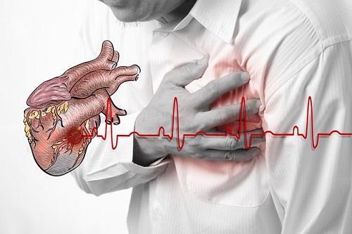 Triệu chứng của thiếu máu cơ tim