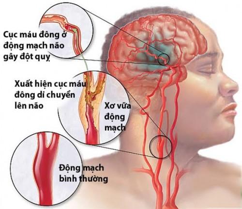 Dấu hiện nhận biết bệnh tai biến mạch máu não ở người cao tuổi