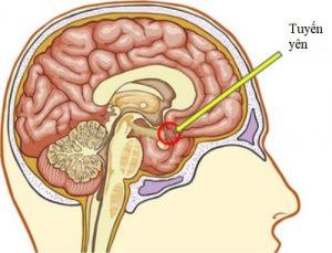 Giảm sản tuyến yên gây thiếu Growth hormone