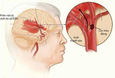 Nguyên nhân gây bệnh xuất huyết não ở người cao tuổi