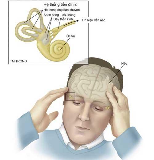 Nguyên nhân gây ra bệnh rối loạn tiền đình ở người già