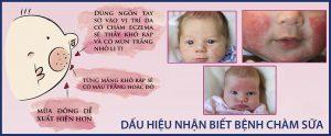 Dấu hiệu nhận biết bệnh chàm sữa ở trẻ