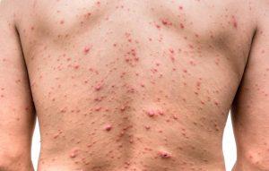 Bệnh thủy đậu là bệnh nhiễm trùng cấp tính do siêu vi Herpes varicellae