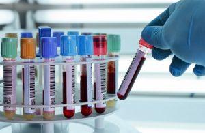 Xét nghiệm cận lâm sàng nào khi nghi ngờ bệnh nhân bị thủy đậu?