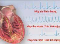 Rối loạn nhịp tim chậm là gì?