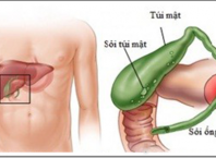 Những điều cần biết về bệnh sỏi mật và phương pháp điều trị