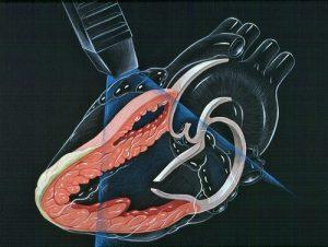 Các xét nghiệm cho bệnh nhân rối loạn nhịp tim chậm