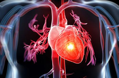 Bệnh mạch vành ở người cao tuổi và những lưu ý trong điều trị