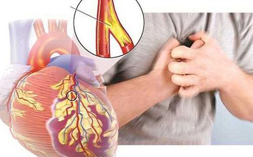 Tại sao người già hay mắc bệnh tim mạch?