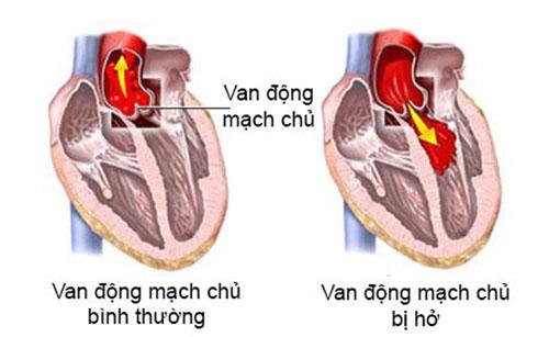 Triệu chứng của bệnh động mạch vành ở người cao tuổi
