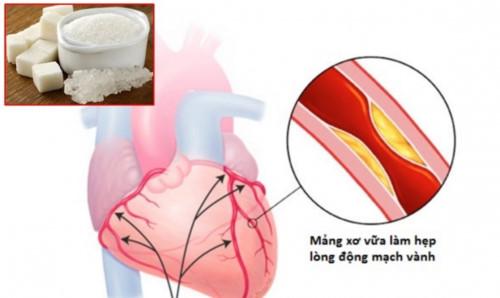 Bệnh mạch vành là gì?