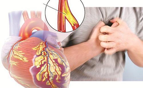 Những chú ý khi điều trị bệnh động mạch vành