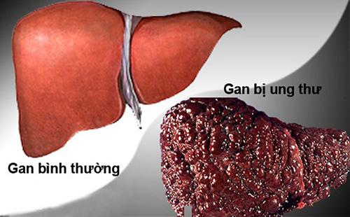 Những bệnh gan ở người cao tuổi thường gặp nhất
