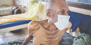 Khó khăn trong chấn đoán bệnh lao ở người cao tuổi