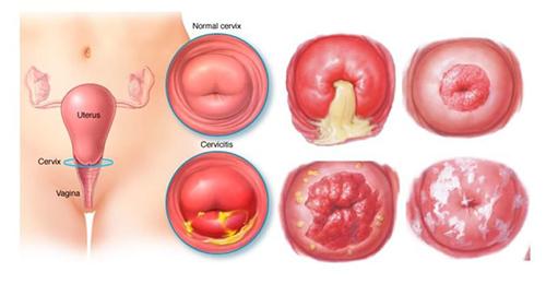 Những điều cần biết về viêm lộ tuyến cổ tử cung?