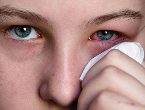 Bệnh thoái hóa võng mạc là gì và hướng điều trị như thế nào?