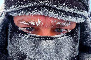 Cách xử lý khi bị bỏng lạnh