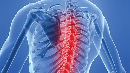Bệnh lao xương là gì?