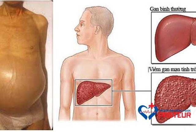Nguyên nhân gây viêm gan không nhiễm trùng