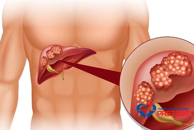 Bệnh viêm gan có những loại nào và có nguy hiểm không?
