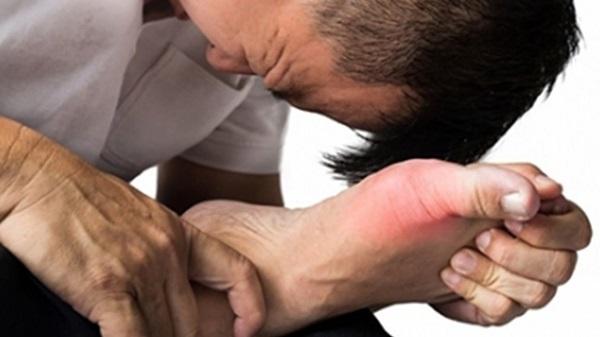 Triệu chứng lâm sàng bệnh Gout
