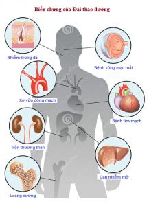 Chuẩn đoán và xử trí bệnh tiểu đường đau thần kinh