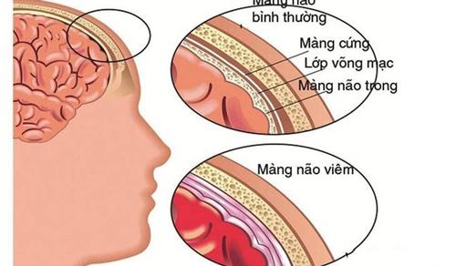 Điều trị bệnh viêm màng não như thế nào?
