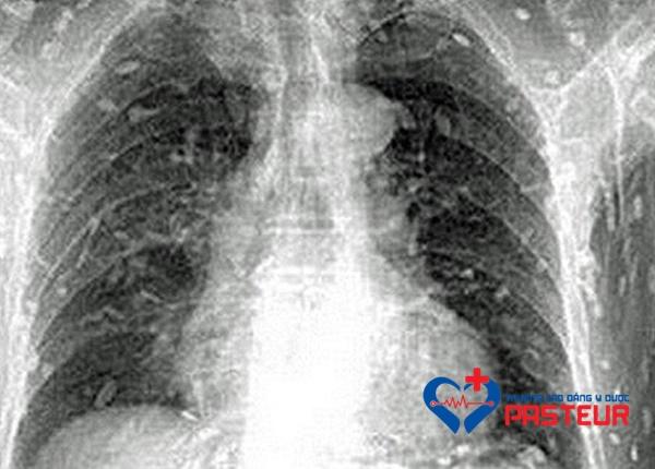 Triệu chứng và dấu hiệu nhận biết nhiễm sán dây