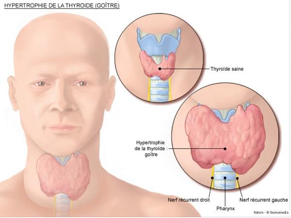 Triệu chứng thực thể của bệnhBasedow