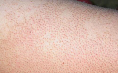 Viêm nang lông là gì?