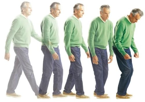 Bệnh hiện đang có xu hướng phát triển nhiều ở người già