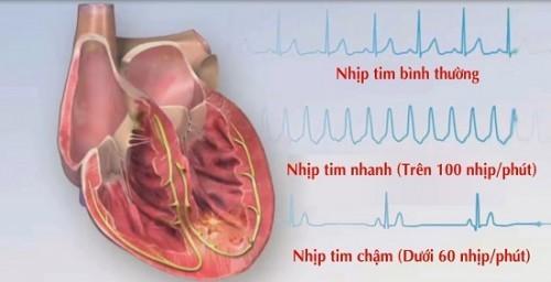 Nhịp tim ở người bình thường đập bao lần trên nhịp?