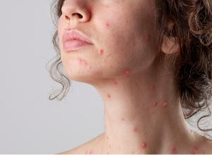 Khi mắc bệnh thủy đậu người bênh có thể gội đầu bình thường