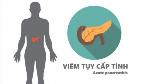 Nguyên nhân nào dẫn đến bệnh viêm tụy cấp
