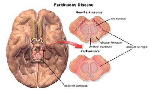 Bệnh Parkinson có những triệu chứng gì?
