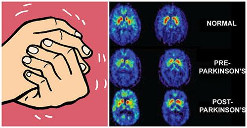 Parkinson là bệnh của người cao tuổi