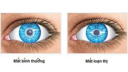 Bạn đã biết gì về tật loạn thị ở mắt?