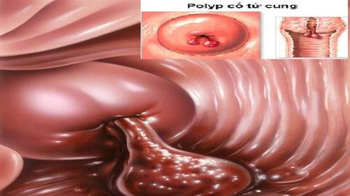 Bạn đã hiểu đúng về polyp cổ tử cung chưa?