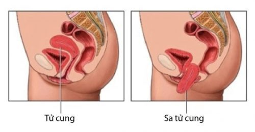 Bệnh sa tử cung và những điều cần biết
