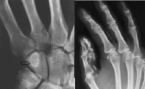 Tìm hiểu về các loại u xương lành tính