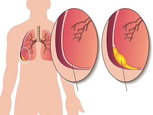 Nguyên nhân dẫn đến viêm màng phổi