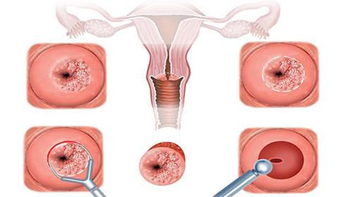 Nguyên nhân và triệu chứng bệnh nang Naboth cổ tử cung