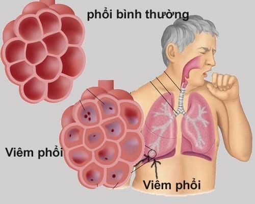 Dấu hiệu và nguyên nhân dẫn đến viêm màng phổi là gì?