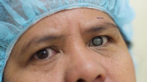 Các bệnh về mắt nguy hiểm thường gặp ở người già