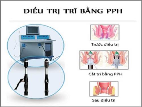 Ưu điểm của phương pháp PPH trong việc điều trị bệnh trĩ